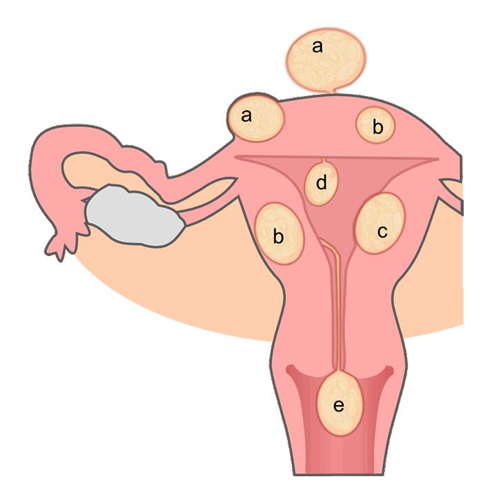 Miomas o fibromas uterinos