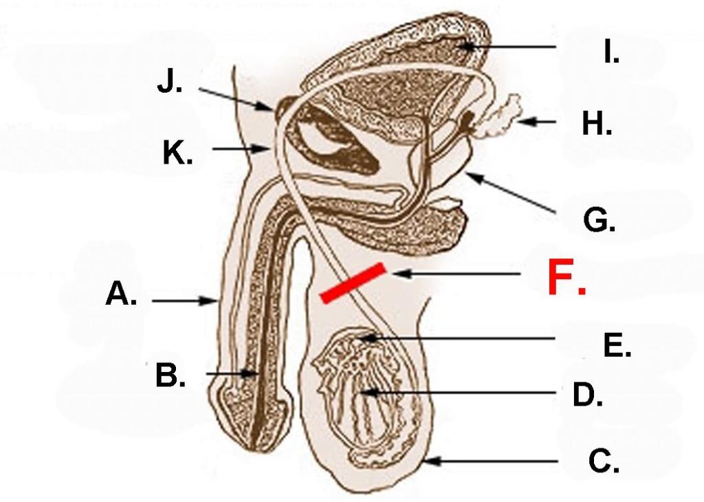 Vasectomia Ginesur