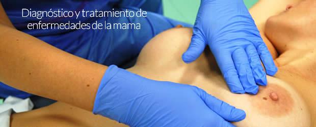 Consulta de mamas